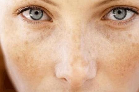脸上皮肤怎么去掉斑点?防止长斑的小窍门