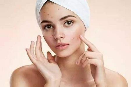 女性脸上痘痘野蛮生长 消灭痘痘就要疏通膀胱经