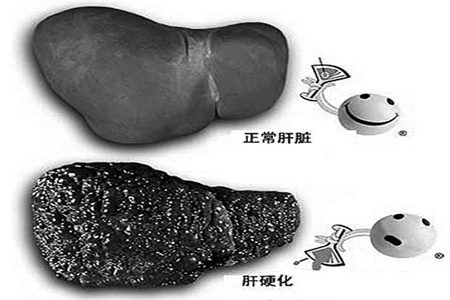 肝硬化喜欢这三类人,这两个部位会呈现肝硬化的早期症状