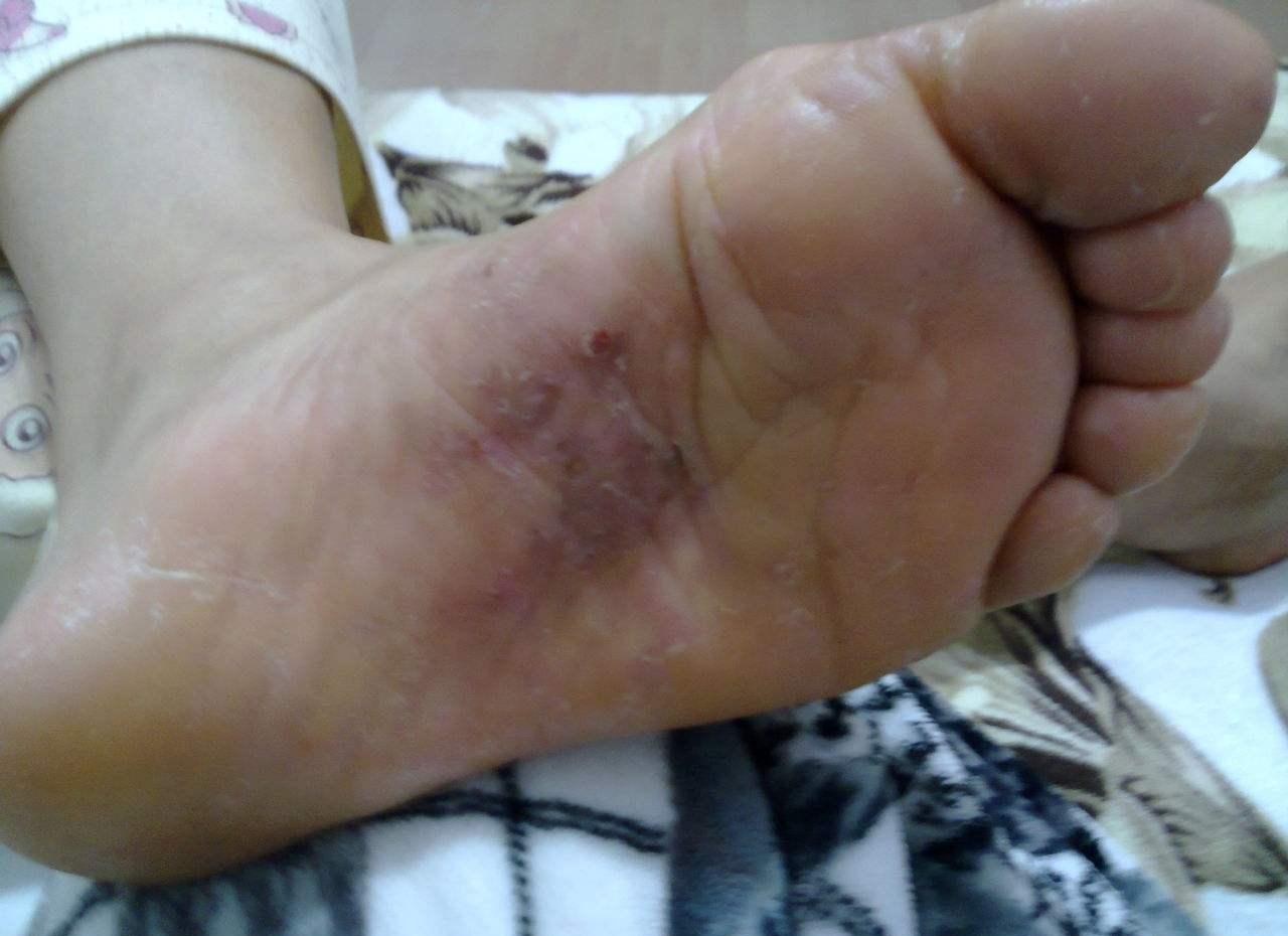 脚心痒是怎么回事 脚心痒一般是细菌感染