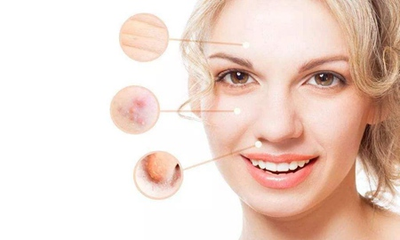 女性面部皮肤下垂怎么办,四个方法延缓衰老