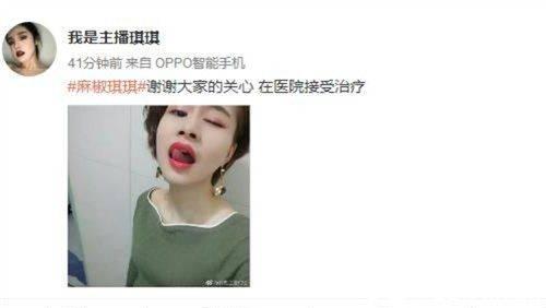 黄鳝门视频自慰大尺度 女主播琪琪照片资源泄露