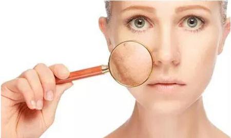 女性脸部皮肤易出现几类问题,了解透彻才能轻松解决