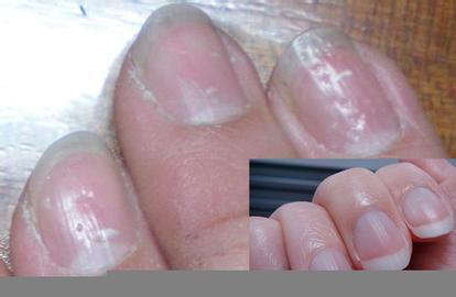 亚健康的表现 手指甲上有小坑