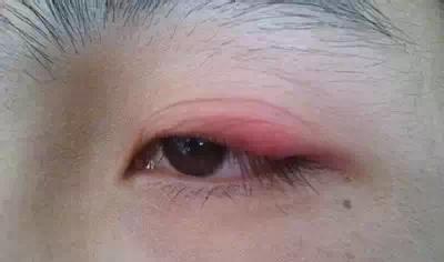 眼睛的门户 割双眼皮的坏处