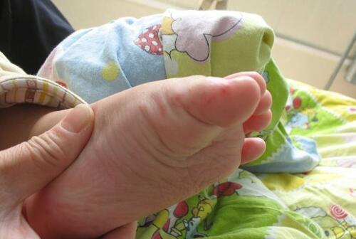 手足口并发症 六招护理孩子手足口病
