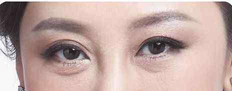 美容去眼袋 黄瓜加这些可以去眼袋,一周就有明显效果,再也不用去美容院了!