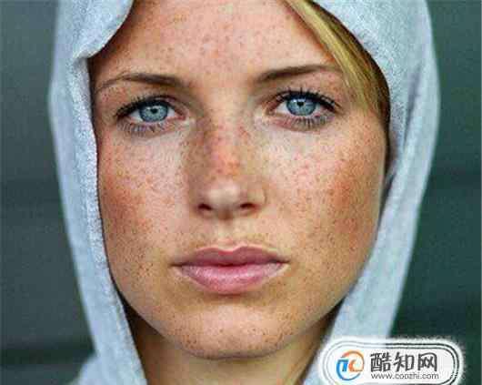 女人长斑的位置图解 告诉你脸部那个地方长斑是哪出了问题