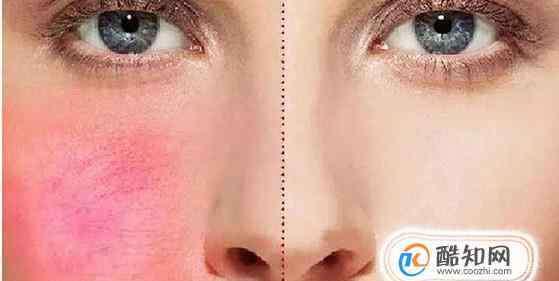皮肤屏障 皮肤屏障受损后的表现?