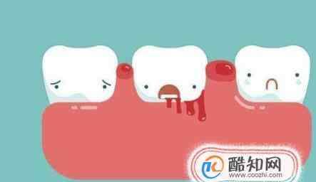 刷牙出血是什么原因 牙龈出血是什么原因?牙龈出血用什么牙膏好?