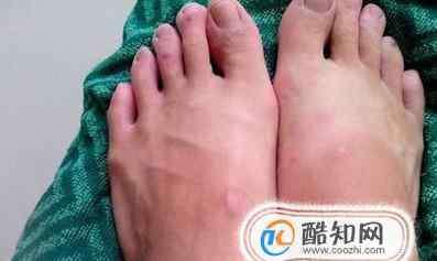 老人脚肿是怎么回事 老人脚肿了怎么消肿