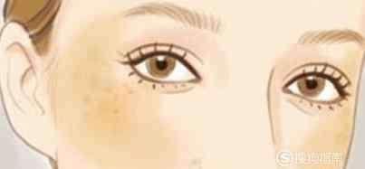 黄褐斑注意事项 激光治疗黄褐斑后注意事项
