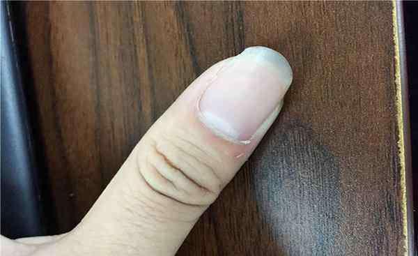 指甲上有凹陷 指甲上有凹沟,暗示了什么病?生长位置不同,暴露的问题可大可小