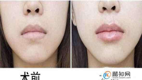 胶原蛋白丰唇价格 做胶原蛋白丰唇价格贵吗