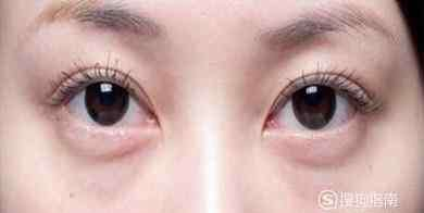 去眼袋手术图片 去眼袋手术后六天照片