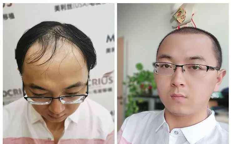 头发再生方法 秃顶大叔变鲜肉!哈尔滨男子秃顶4年,终于用这种方式实现了毛发再生!