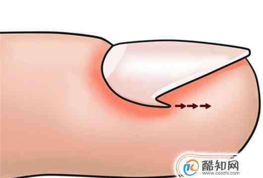 嵌甲 嵌甲是怎么形成的?如何治疗与预防嵌甲?