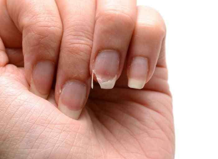 手指甲颜色发紫图片 白色、黄色、红色,不同颜色的指甲代表不同的健康状况,这11个问题别忽视