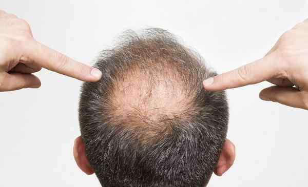 头发秃顶能治好吗 脱发严重怎么办,治疗秃顶的最好方法!