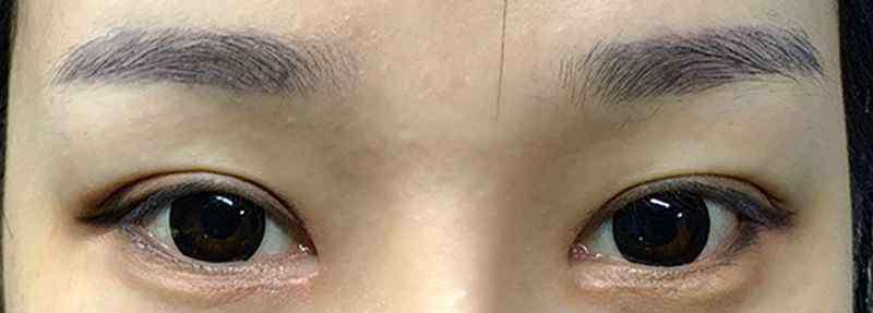 美眼仪 美眼仪怎么用
