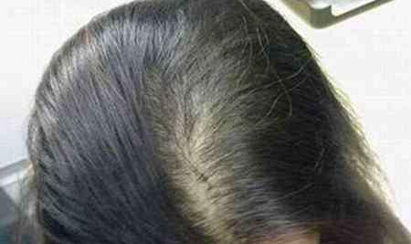 女人脱发怎么办?与其信脱发偏方,不如做这几件事
