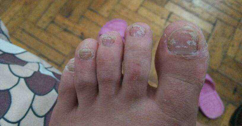 脚趾甲变厚用什么药以及有哪些治疗方法