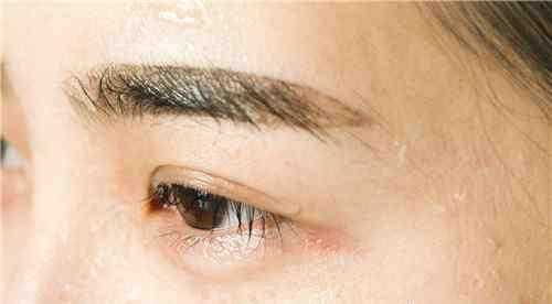 如何去红血丝 如何快速消除眼睛红血丝 7个小妙招教你快速消除红血丝