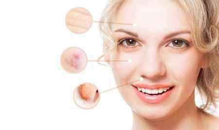 面部皮肤下垂 女性面部皮肤下垂怎么办,四个方法延缓衰老