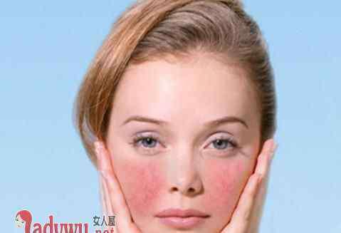 怎样可以去除脸上的红血丝 脸上有红血丝怎么消除 这几招能够有效的去除红血丝