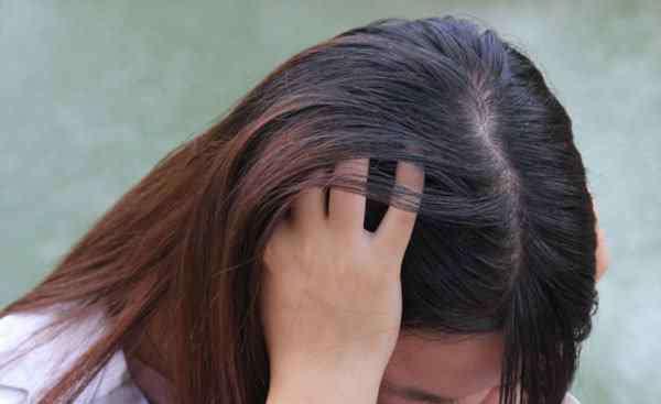 """头发油腻 三天不洗头,头皮抠出""""白色泥垢""""是什么?为什么头发容易油腻?"""