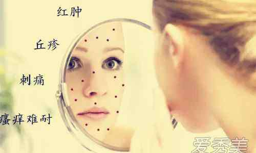 怎样调理激素脸 激素脸怎么排激素 讨论激素脸反复发作怎么办