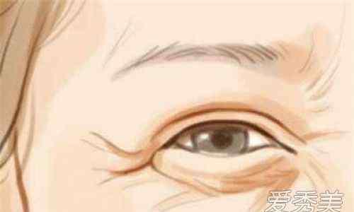 去眼袋有效 眼袋怎么消除 去眼袋有效果的小窍门