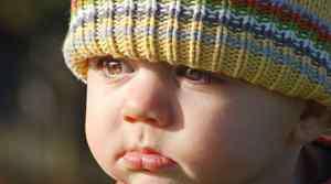 宝宝脸上色素沉着图片 宝宝色素沉着怎么去除