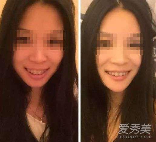 削骨手术前后对比图 20组牙齿矫正前后对比图 效果比整容强!