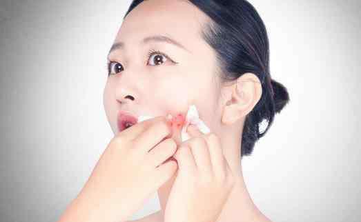粉刺是什么样子 粉刺要不要挤出来 什么样的粉刺痘痘需要挤出来