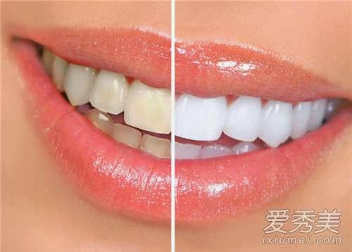 美白牙贴好不好 美白牙贴好用吗 美白牙贴多久用一次