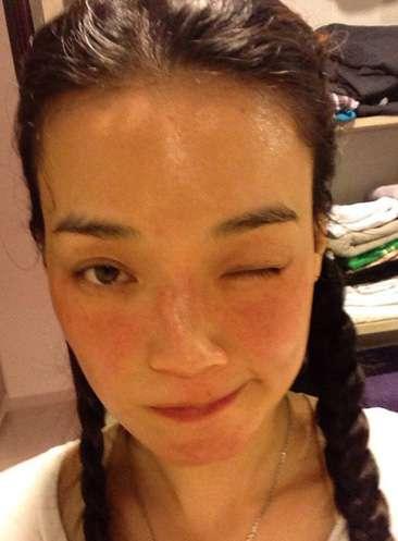 春季皮肤过敏 春天皮肤过敏7个原因 90%是自找的!