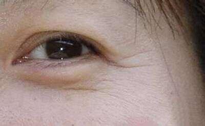 出现鱼尾纹怎么办 眼角有鱼尾纹了怎么办 去除眼角长鱼尾纹的方法