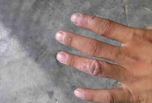 手干燥脱皮怎么办 手起皮干怎么办 有什么治疗办法