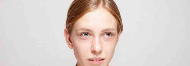黑眼圈怎么消除 有黑眼圈怎么消除 消除黑眼圈的5个方法