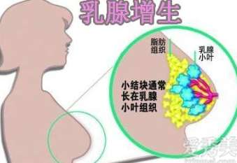 乳腺增生有什么症状 乳腺增生有哪些症状 乳腺增生的症状表现必知