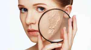 怎么去脸上的斑点 怎么可以去脸上的斑