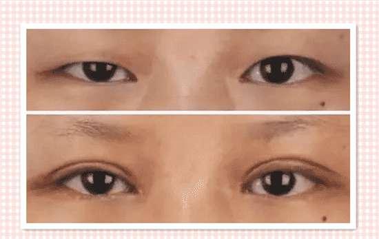 上眼皮下垂的解决方法 眼睑下垂会自己好吗 能自愈的话还要手术有何用