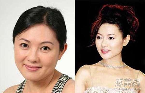 王蓉整容前后 李丽珍大s王菲 10大女星打瘦脸针整容前后