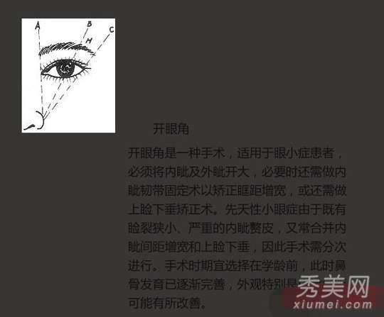 大眼美女明星 12位女星大眼睛是人工? 图揭女星开眼角前后