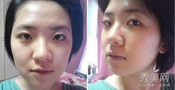 隆鼻过程图 整容经历:网友自曝隆鼻手术前后效果图