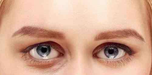 遗传的眼袋怎么消除呢 眼袋形成的原因有哪些?如何消除眼袋?