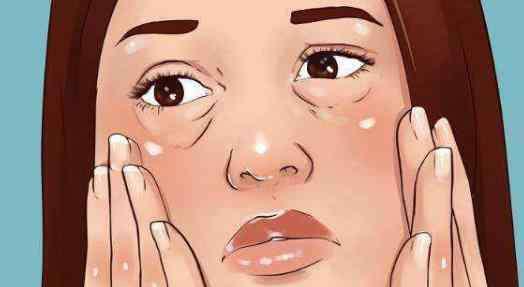 女人早起脸浮肿的原因 早上起来脸肿的原因有哪些?早上起来脸肿该怎么办?
