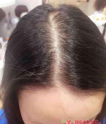 女人掉发是什么原因 女人掉头发很厉害是什么原因 女士掉头发厉害的原因