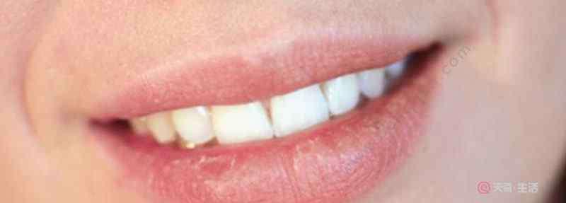 唇膜可以天天用吗 兰芝唇膜能不能天天用  兰芝唇膜需要天天用吗